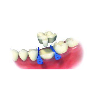 ovc - dentist brochure-distributor v1_page_1_image_0001