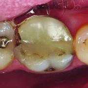 ovc - dentist brochure-distributor v1_page_2_image_0002