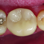 ovc - dentist brochure-distributor v1_page_2_image_0003