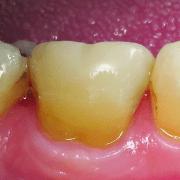 ovc - dentist brochure-distributor v1_page_2_image_0004